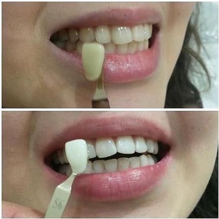 Подбор цвета зубов
