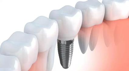 Имплант замещает собой корень утраченного зуба