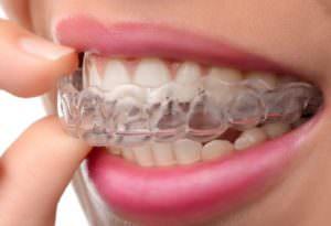 что такое каппы для исправления зубов